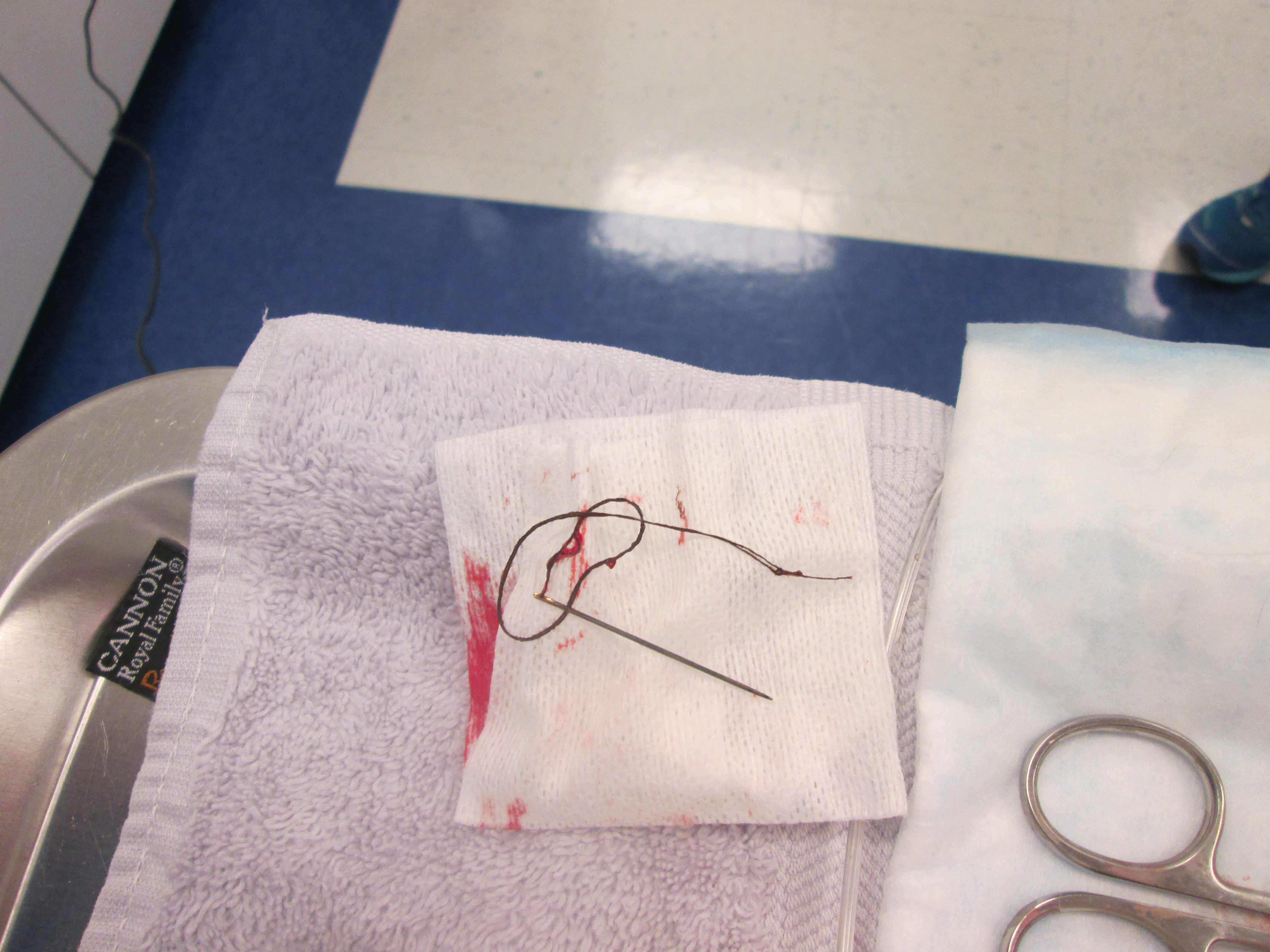 The needle and thread after removal.